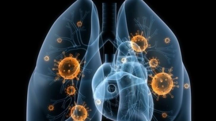 simptome cancer plamani