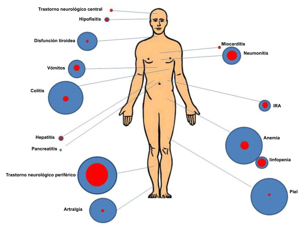 Anemia, simptom frecvent asociat cancerului