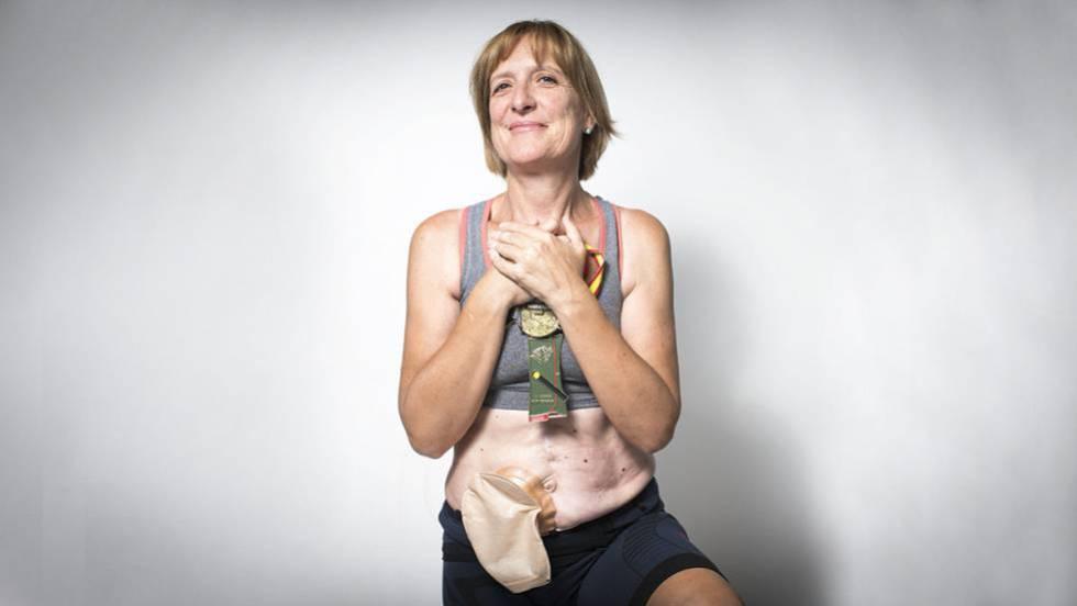 Cancer de colon bolsa heces