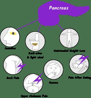 Pancreatic cancer diarrhea