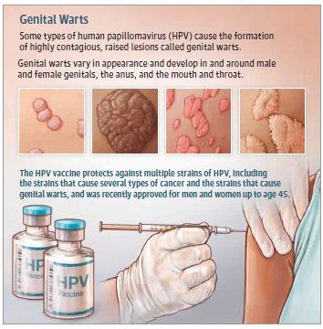 hpv strains warts)
