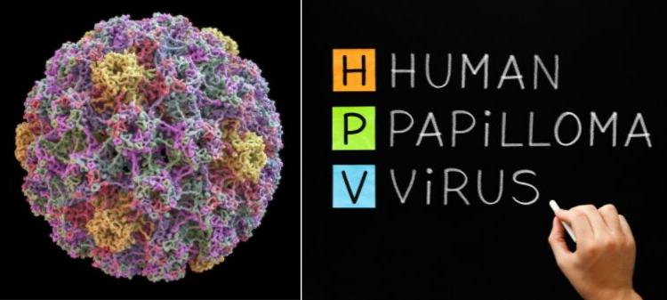 virus hpv( human papilloma virus))