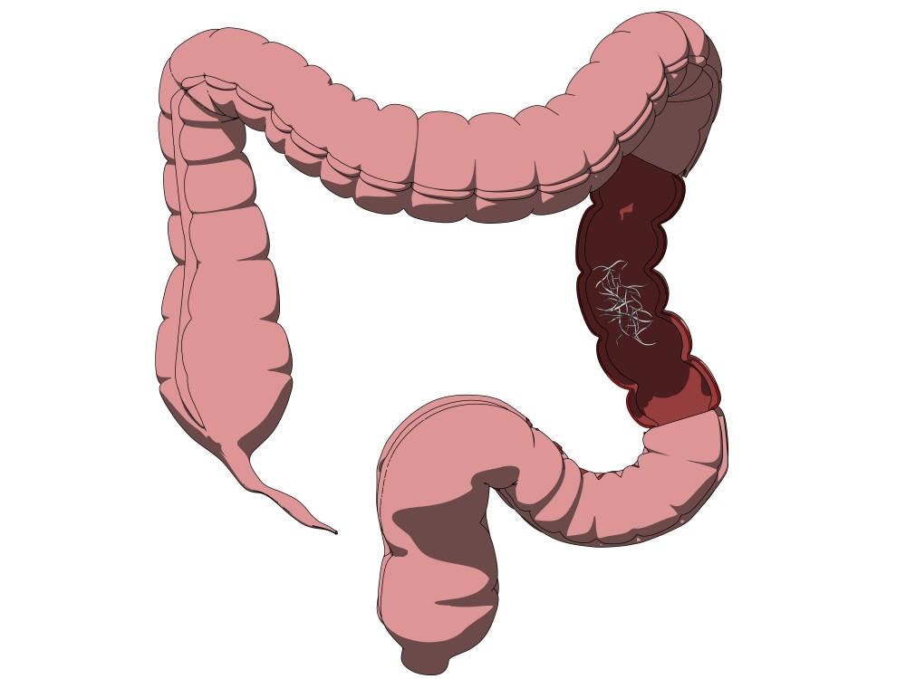 simptomele infecției cu vierme la adulți)