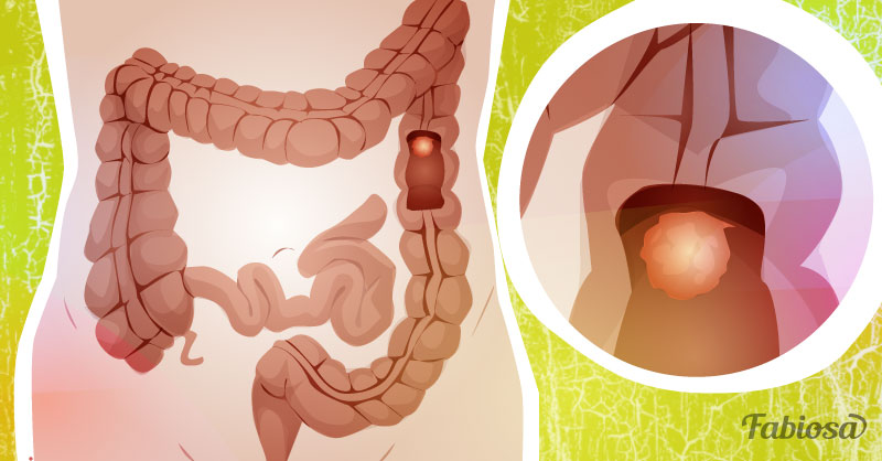 cancer colorectal douleur medhelp hpv throat cancer