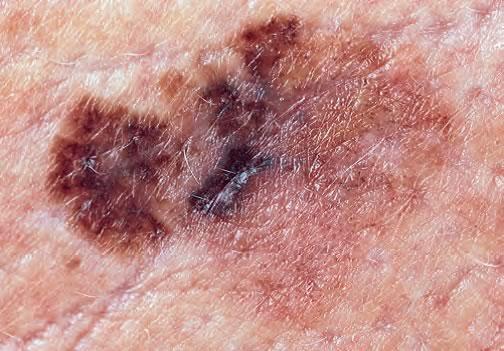 Jumătate dintre românii bolnavi de cancer de piele își pierd viața   Romania Libera