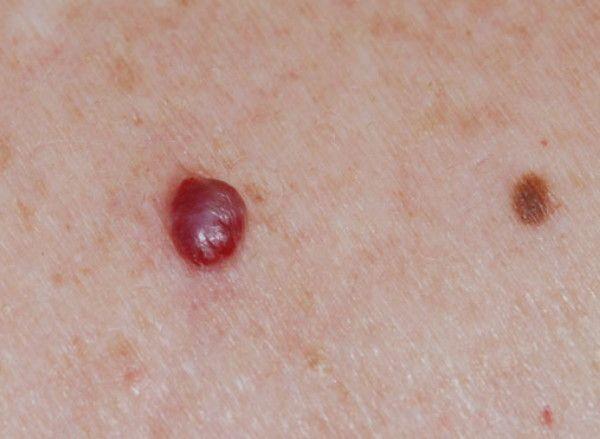 cancer de piele faza incipienta