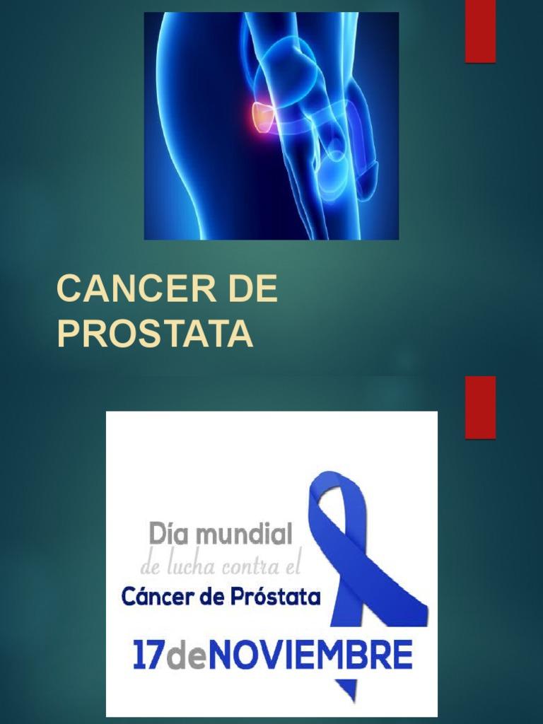 cancer de prostata diapositivas)