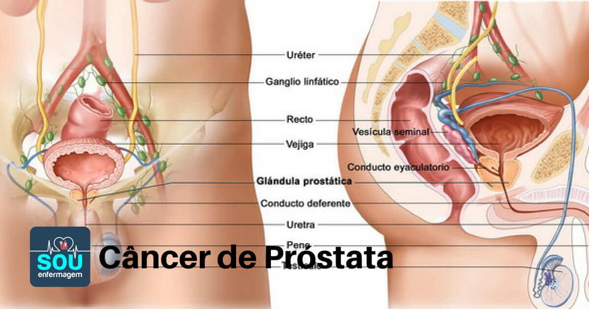 Cancer de prostata ultima faza