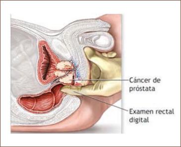 cancer de prostata quando operar)