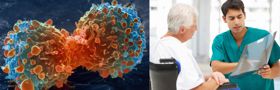 cancer de prostata terapia hormonal supervivencia)