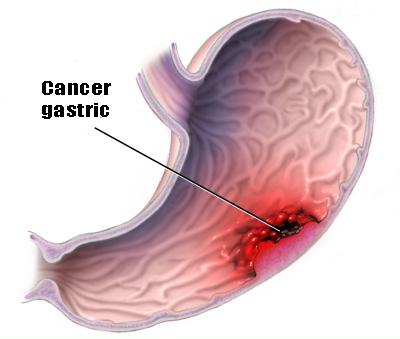 cancer gastric stadii
