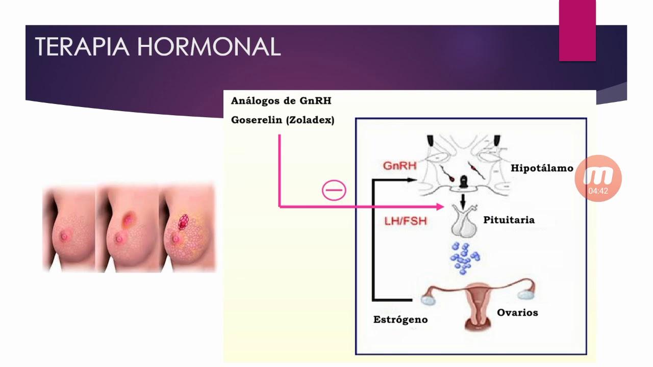 cancer hormonal de mama