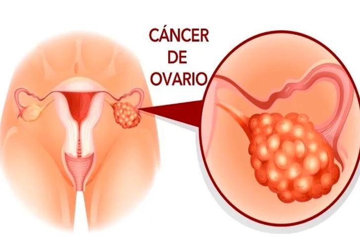 Ce înseamnă cancer de prostata