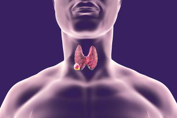 cancer laringian malign