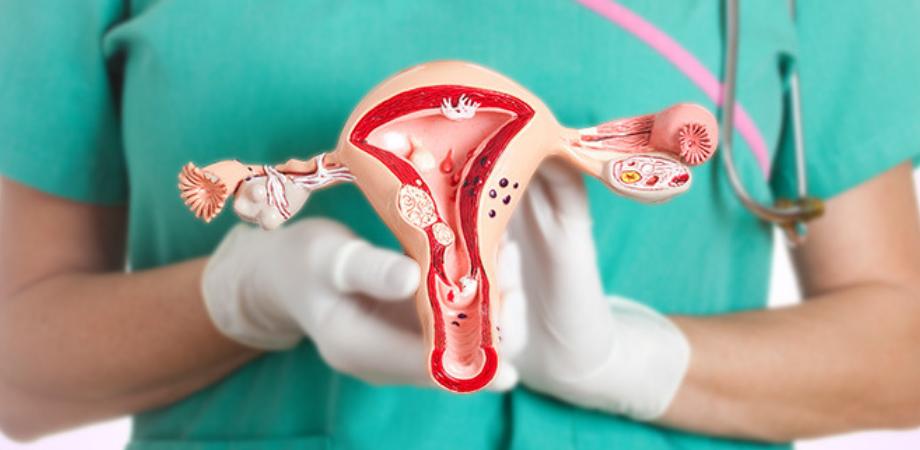 cancer ovarian dupa histerectomie)