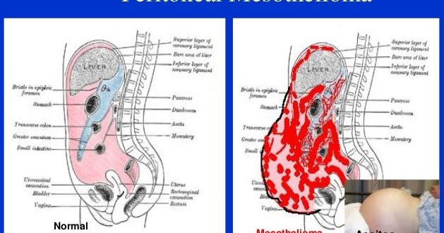 hpv and genital warts the same thing