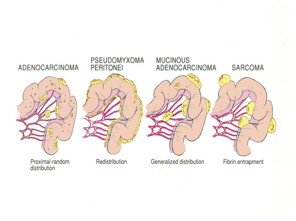 cancer peritoneal tratamiento)