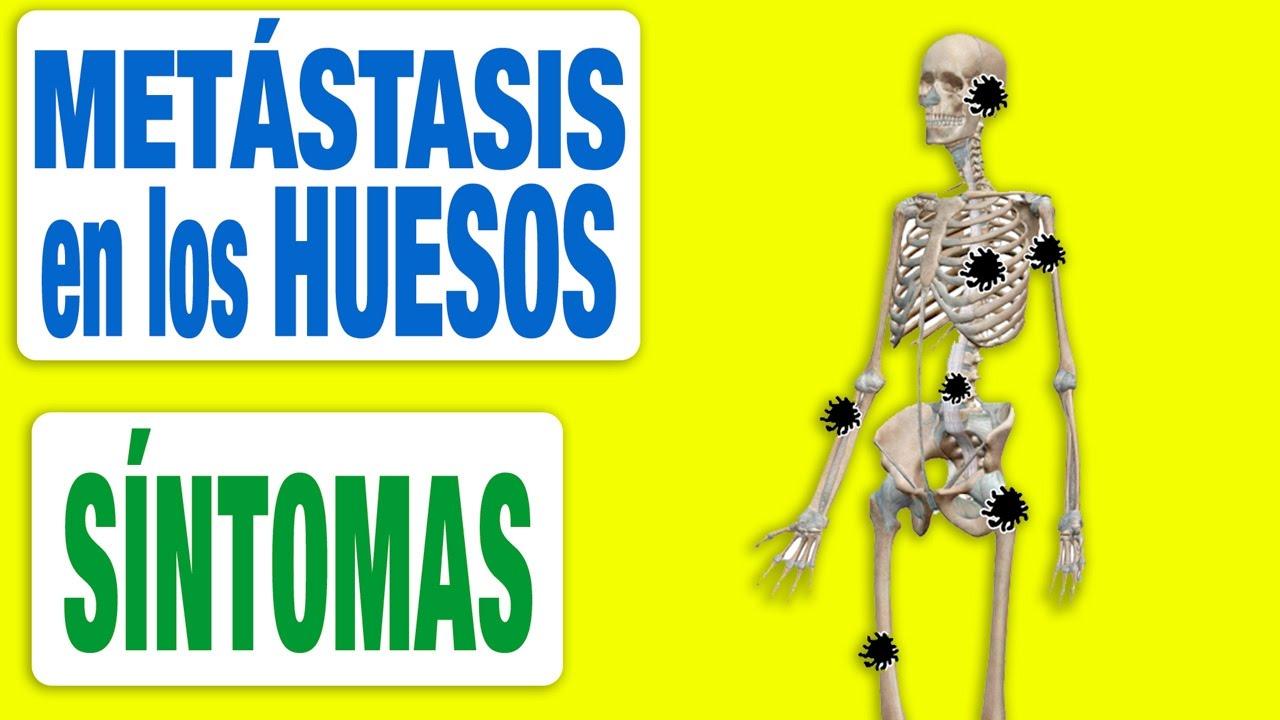 Cancer de prostata con metastasis en los huesos,