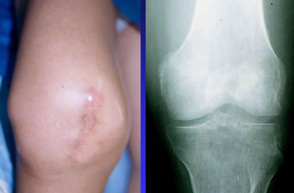 cancer sarcome genou)
