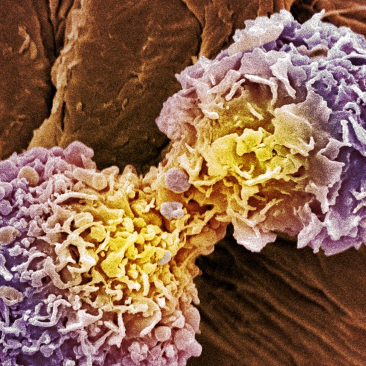 cancer tratament israel