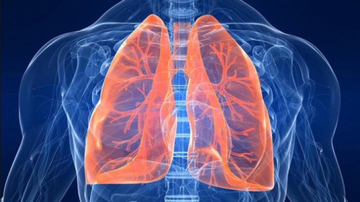 cancerul de plamani simptome)