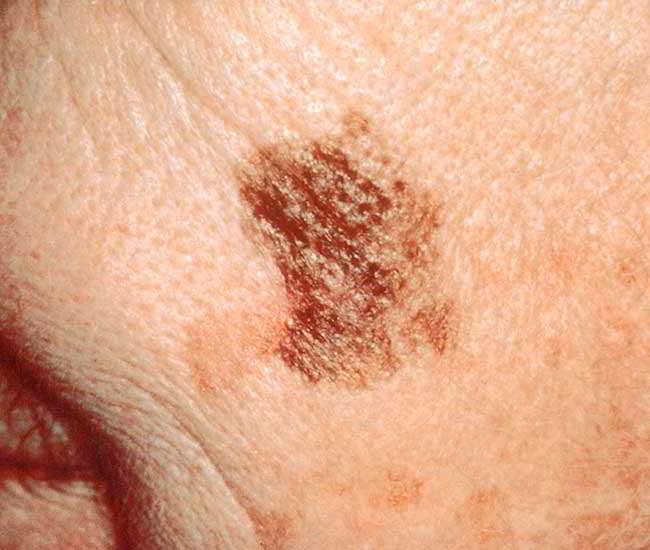 cancerul pielii)