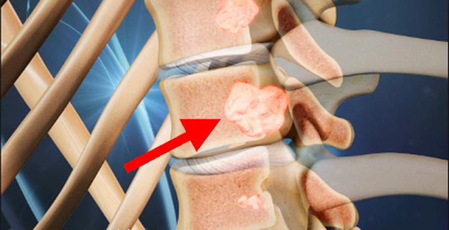 Tumorile spinale