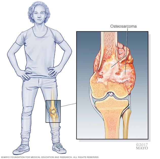 Sarcoma cancer back