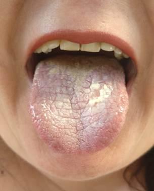 Papiloma lingual histologia. Hiperplazie limfoidă foliculară papilom cavitate orală