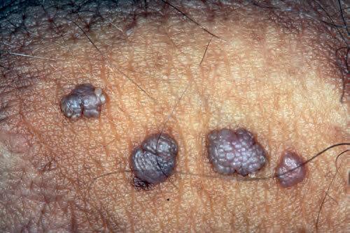 condyloma acuminata la femei