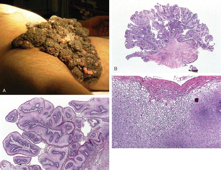 condyloma acuminatum hpv strains