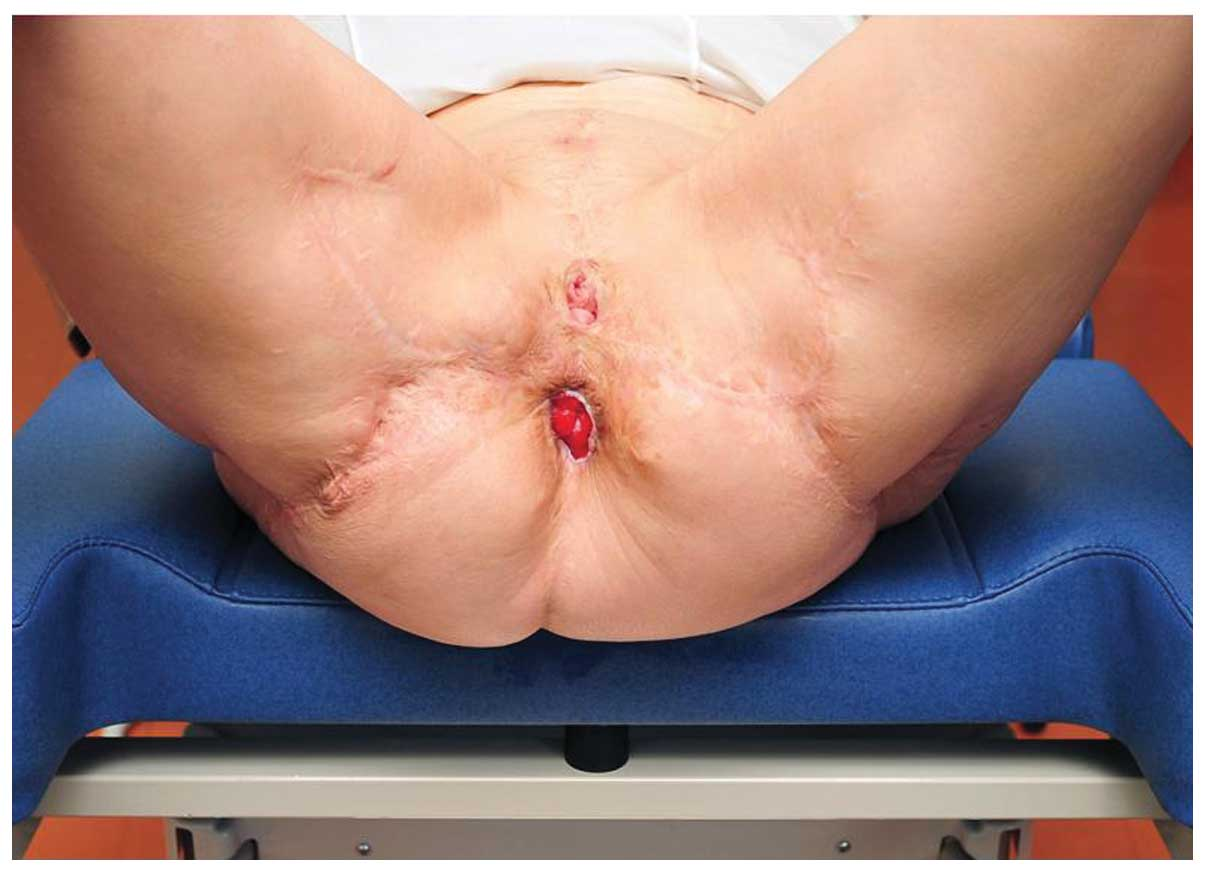Condyloma acuminata of cervix,
