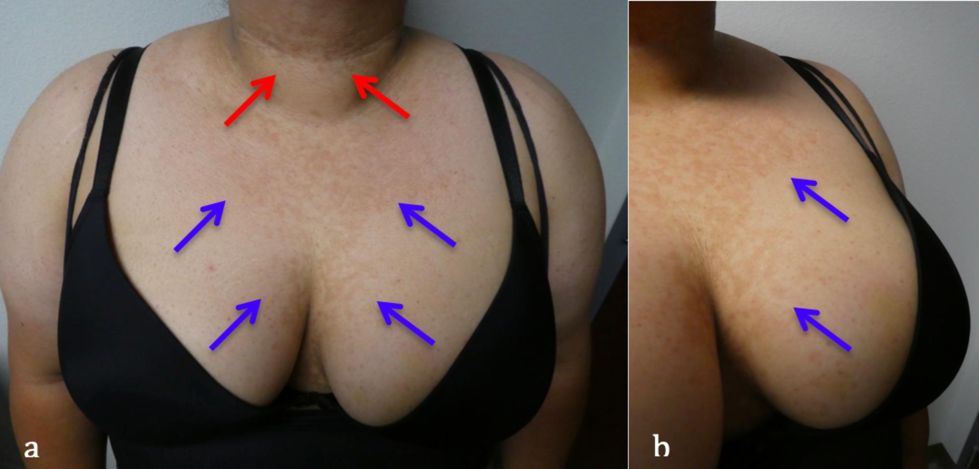 Psoriazis la fața locului pe cuie Confluent reticulated papillomatosis causes