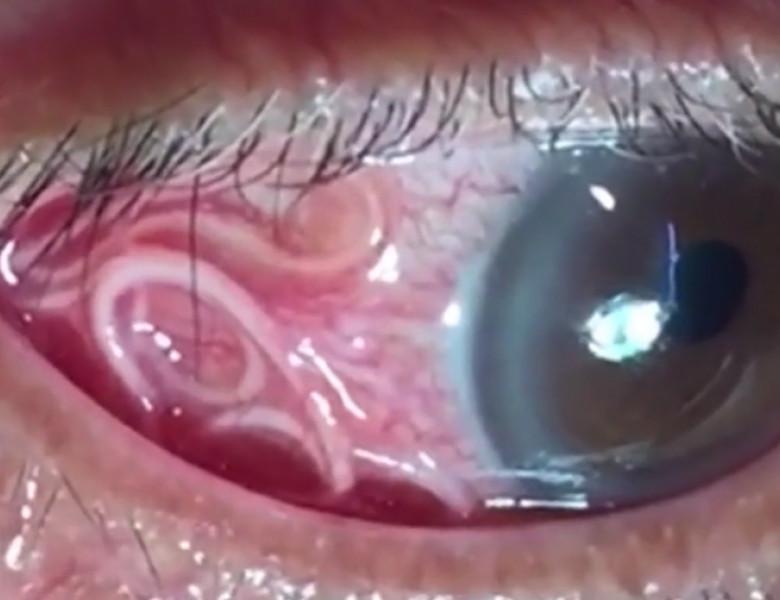 cum să scoți un vierme din ochi