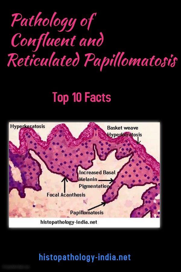 Histopathology of confluent and reticulated papillomatosis - Hpv szemolcs kepekben