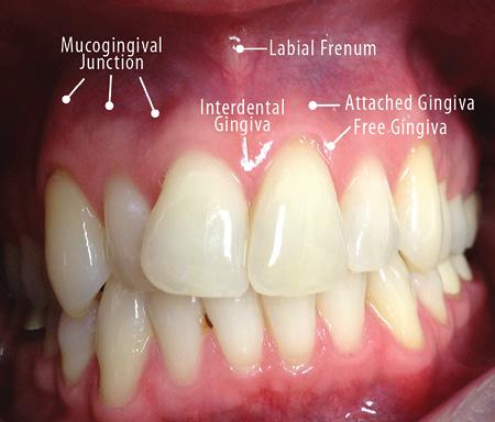 gingival papilloma cause)