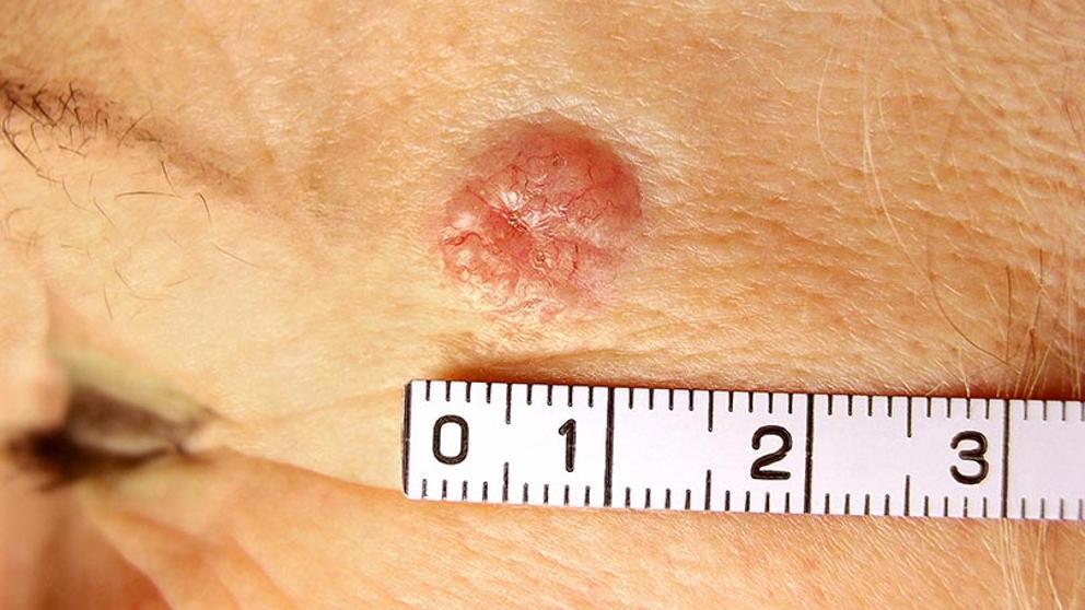 que es cancer de piel)