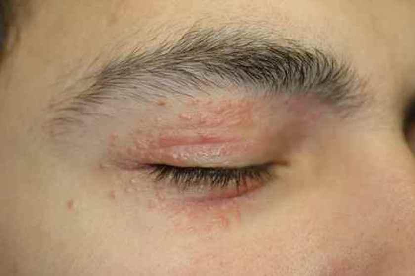 dermatite yeux)