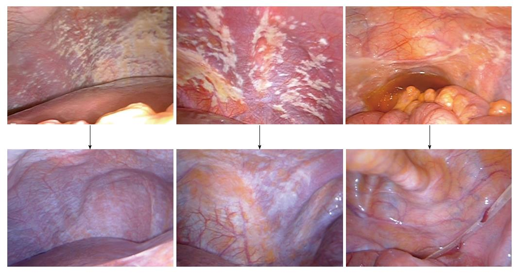 peritoneal cancer death)