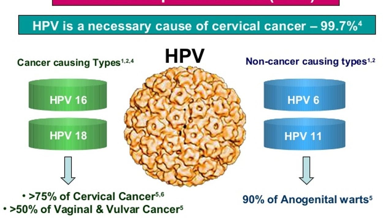 cancer e hpv duct papilloma cancer