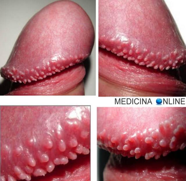 papilloma virus e brufoli)