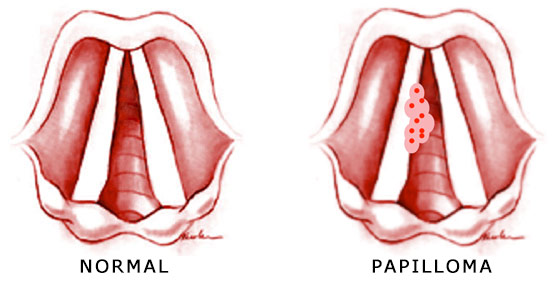 papilloma is it cancer)