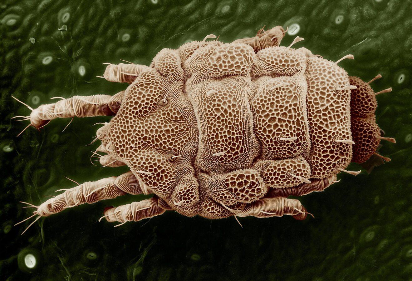 papillomi sul collo parassiti