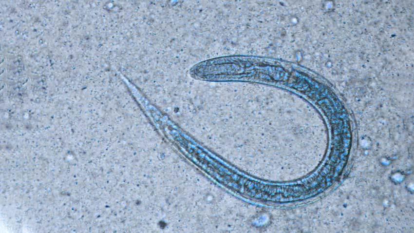 enterobius vermicularis bno)