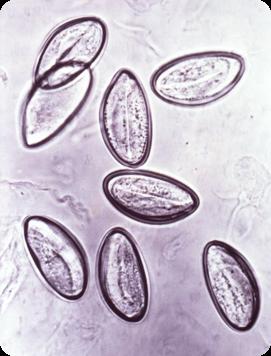 enterobius vermicularis uova)