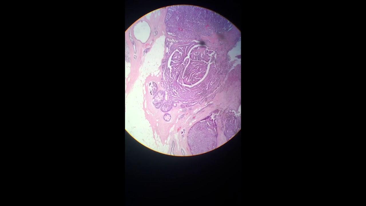 Kindermadenwurm (enterobius vermicularis)