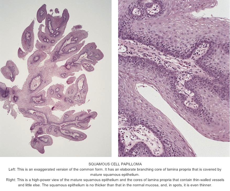 esophagus squamous papilloma pathology)