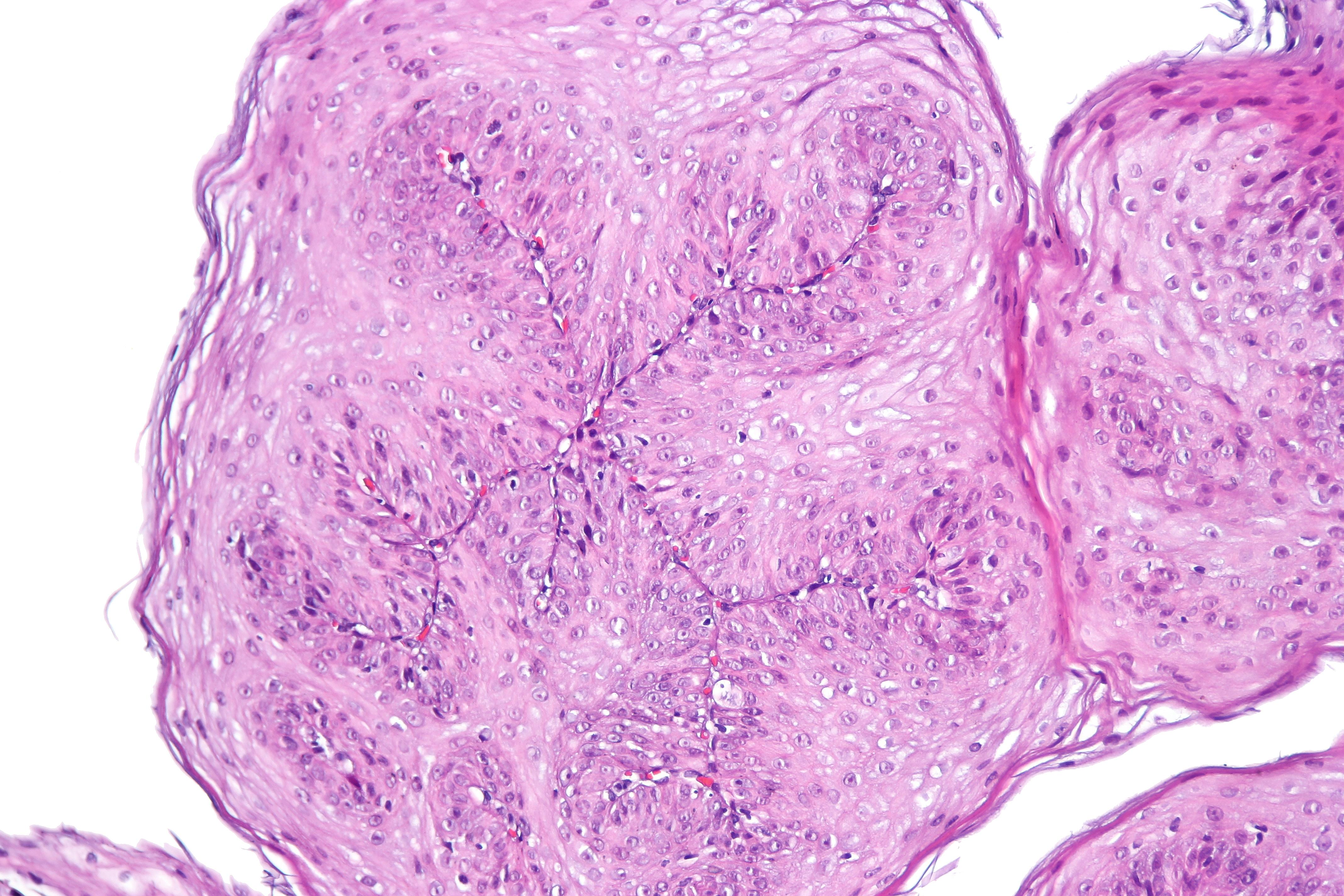 esophageal papilloma)