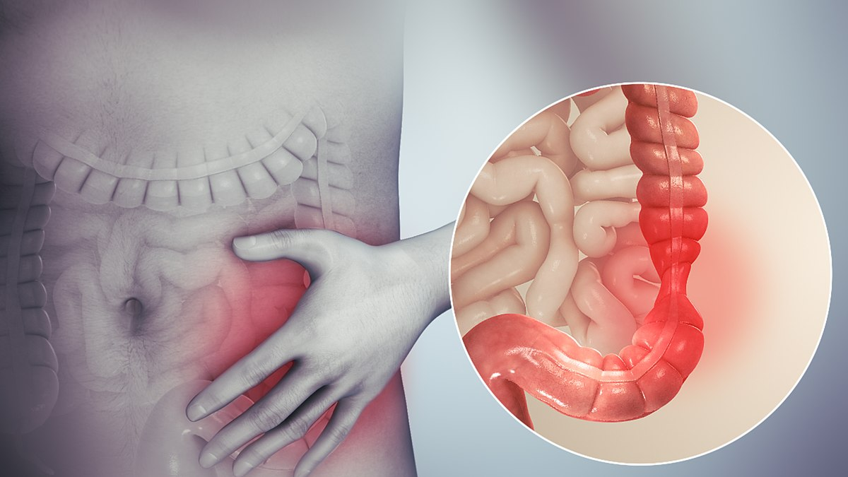 inverted papilloma malignant change simptomele și tratamentul viermilor la copii