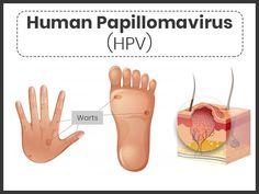 human papillomavirus cause warts